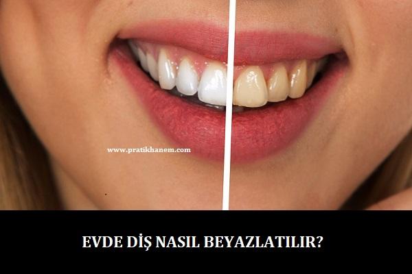 Evde Diş Nasıl Beyazlatılır